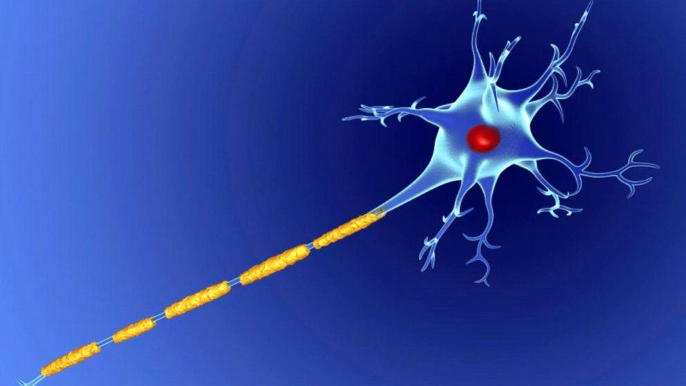 o que é a esclerose multipla