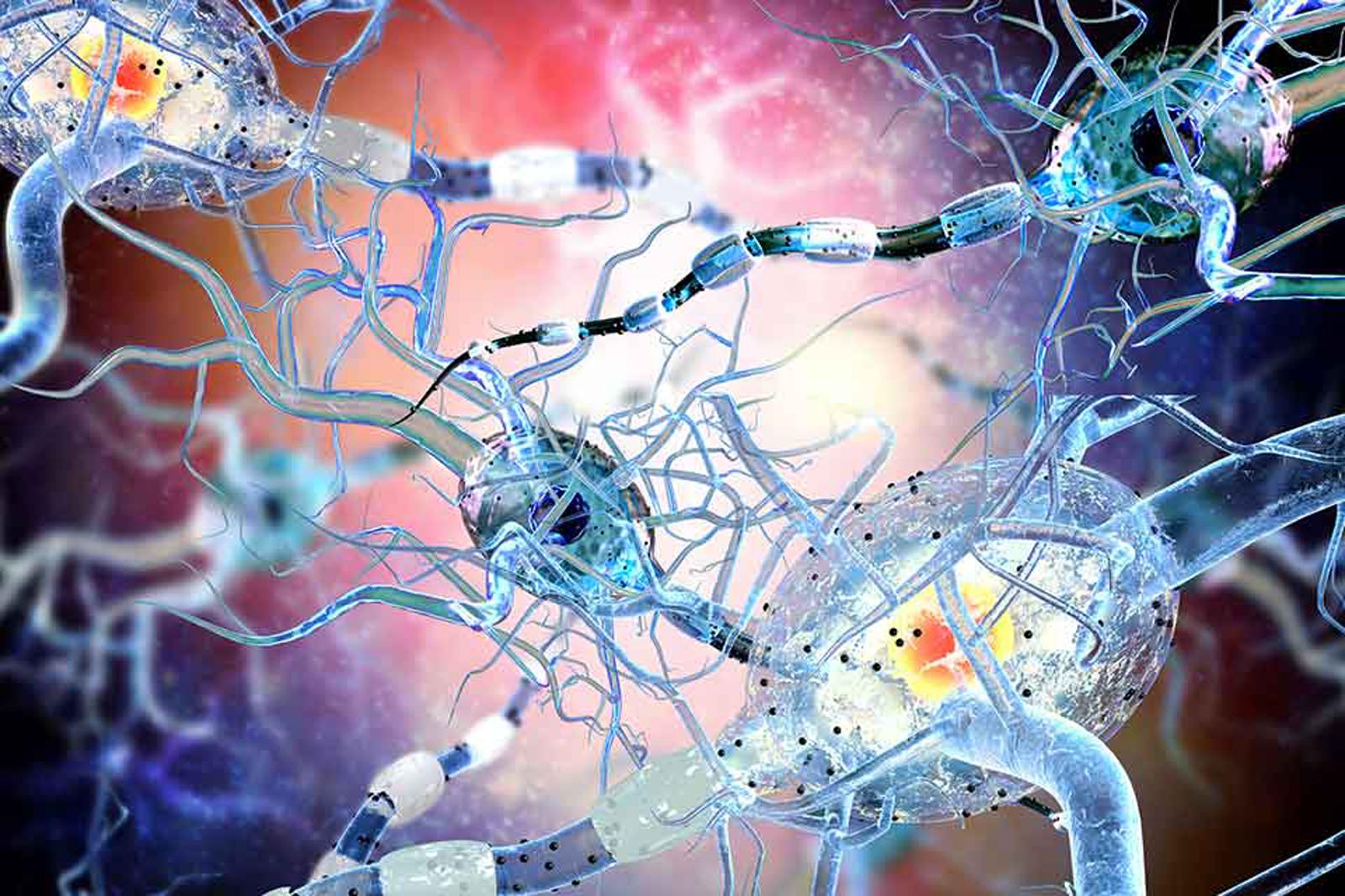 Infarmed aprova novo medicamento no tratamento da Esclerose Múltipla em Portugal